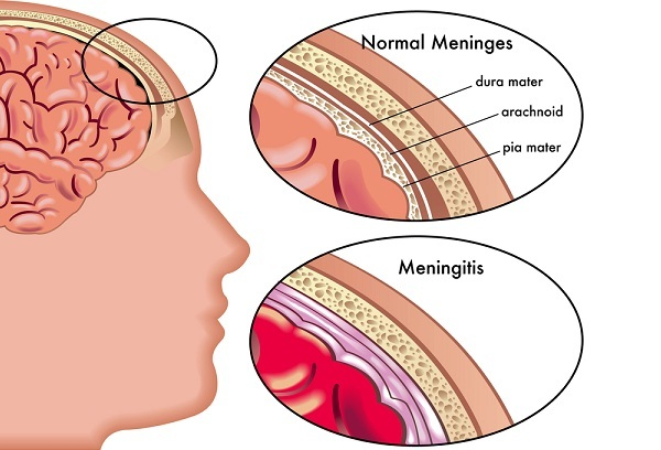 Are You at Risk for Meningitis